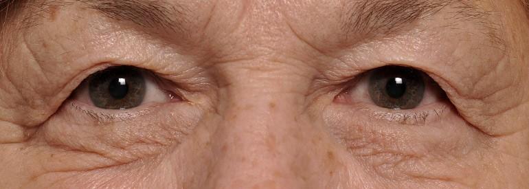 blepharoplasty-droopy-eyelids