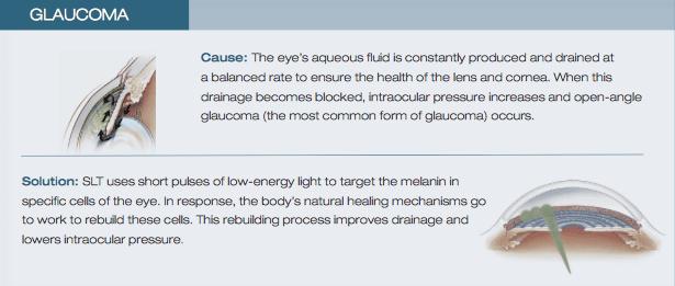 Glaucoma_SLT