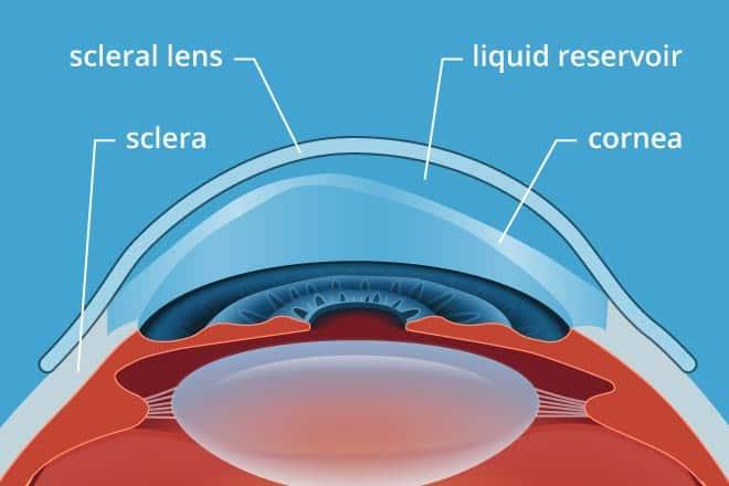 scleral-lens-diagram-330x2202x